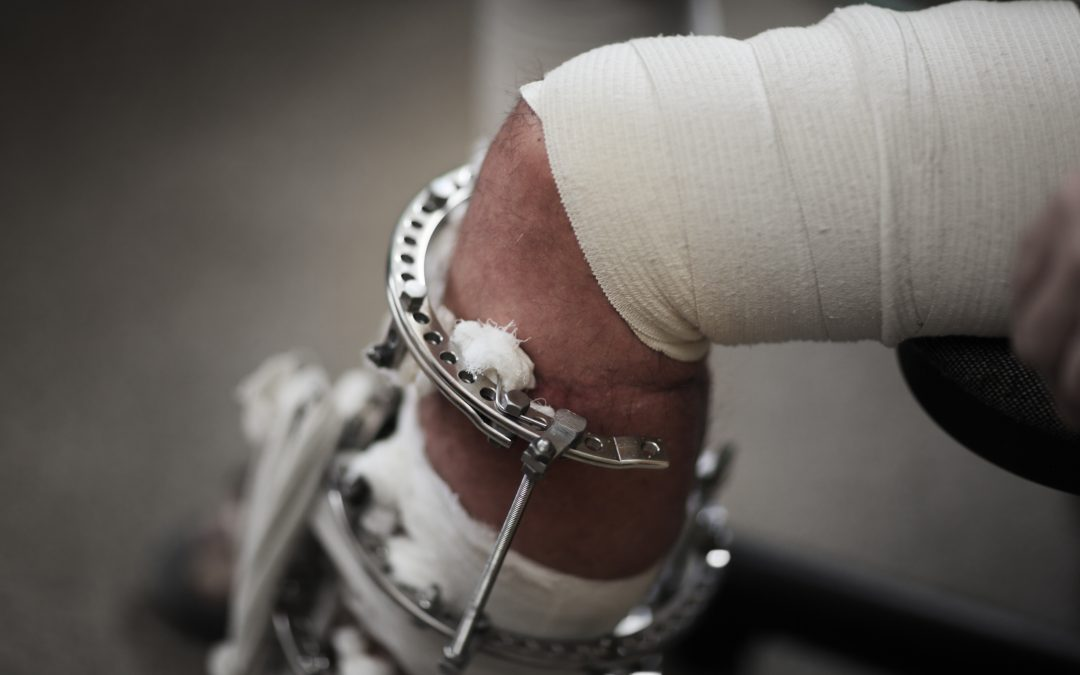 Odszkodowanie powypadkowe za złamaną nogę