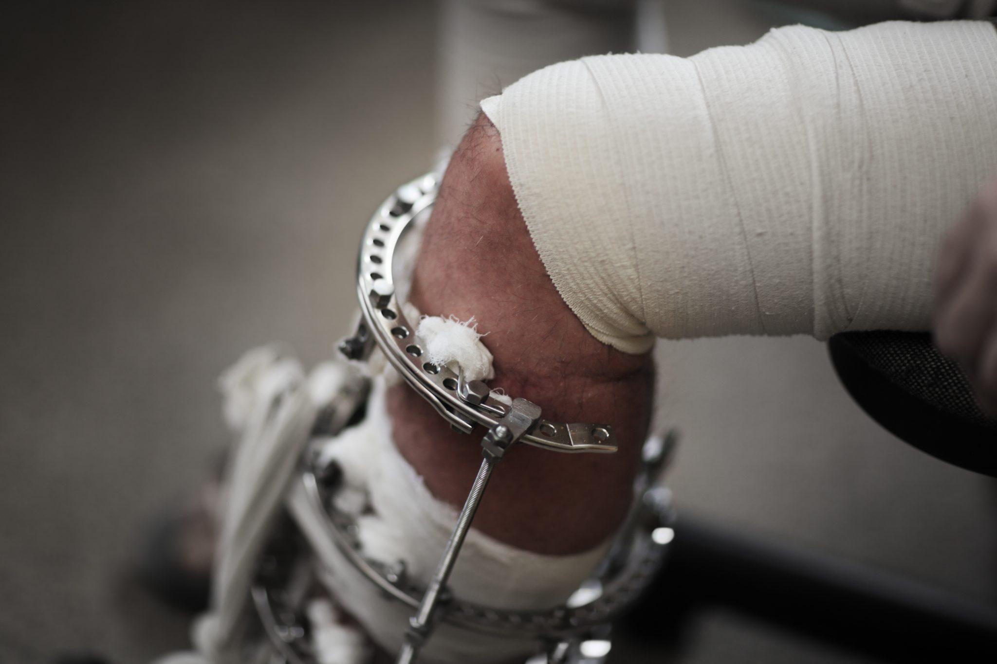 Potrącenie rowerzysty – odszkodowania powypadkowe