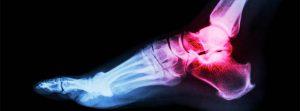 Odszkodowanie powypadkowe za złamaną stopę, nogę