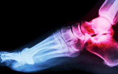 Odszkodowanie po wypadku za złamanie stopy